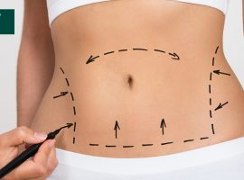 Is Liposuction Required During Tummy Tuck
