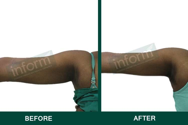 Arm liposuction in Hyderabad