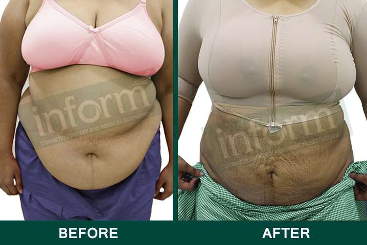 Female Liposuction in Hyderabad