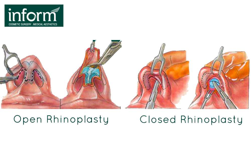 Closed Rhinoplasty Or Open Rhinoplasty Which Technique Suits Your Needs Inform Clinics