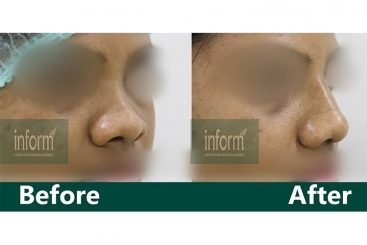 Augmentation Rhinoplasty- Dorsal augmentation done with 2 layers of ear cartilage graft