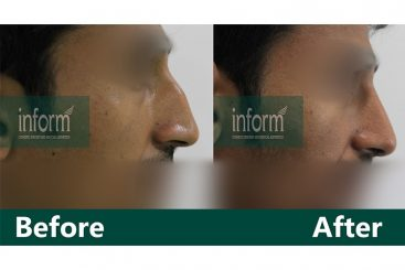 Dorsal hump reduction and Augmentation of root of nose